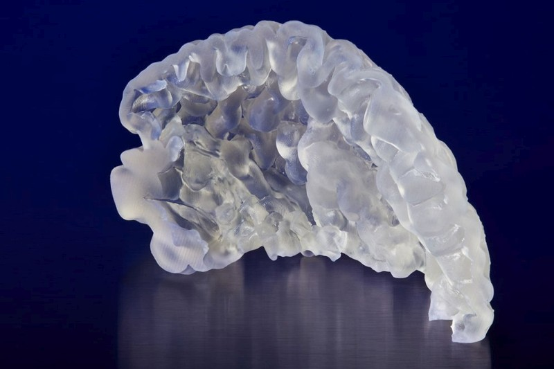Durchsichtiges Hirngewebe
